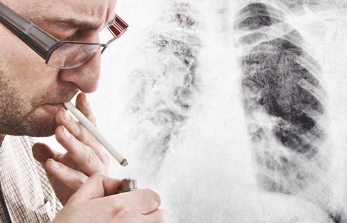 Cancer du poumon : le tabac à l'origine de dégâts sur l'ADN