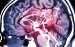 AVC ischémique : faut-il faire baisser la pression artérielle à la phase aiguë ?