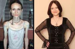 L'anorexie conduit à une perte de matière grise dans le cerveau