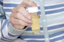 Cystite : les tests urinaires manquent d'efficacité