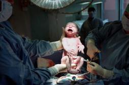 Deux fois plus de césariennes dans les cliniques qu'à l'hôpital