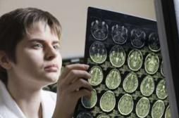 Parkinson, sclérose en plaques : des idées reçues et fausses