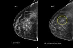 La mammographie en 3D améliore le dépistage du cancer du sein