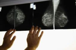 Cancers héréditaires : les médecins pourront prévenir l'entourage