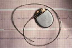 La thérapie génique pour remplacer le pacemaker