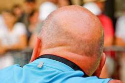 Calvitie : une piste pour la repousse des cheveux découverte accidentellement