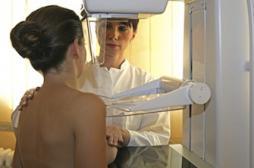 Cancer du sein : des protéines en cause dans la propagation des tumeurs