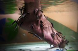 La fish pédicure présente des risques sanitaires