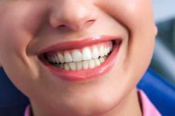 Blanchiment des dents : l'Ansm retire des produits dangereux