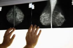 Trois millions de femmes ont fait une mammographie en 2012