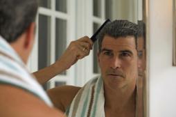 Calvitie: les hommes prêts à tout pour l'éviter