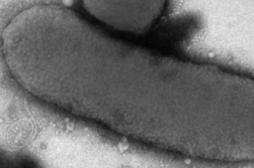 Nourrissons de Chambéry : la bactérie tueuse identifiée