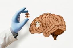 Un simple test urinaire pourrait détecter les tumeurs cérébrales