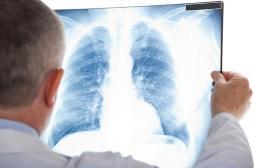 Cancer du poumon : un accès réduit au traitement combiné réduit l'espérance de vie