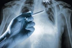 Dépistage du cancer du poumon : les États-Unis avancent l'âge à 50 ans