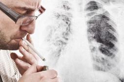 Cancer du poumon non opérable : les vrais espoirs de l'immunothérapie