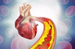 Athérosclérose : la piste de traitements par des peptides de synthèse