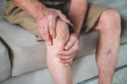 Maladie veineuse : des traitements pour chaque stade