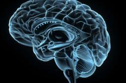 Alzheimer : vers un médicament pour éviter les caillots dans le cerveau