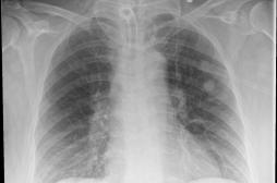 Une femme se retrouve avec un écouvillon coincé dans un poumon après un test Covid-19