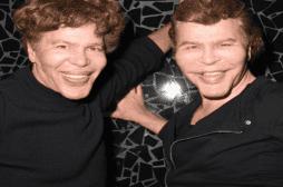 Acromégalie : les frères Bogdanoff sont-ils atteints d'une maladie rare ?