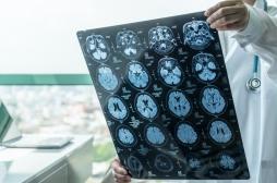 Anxiété des adolescents : l'imagerie cérébrale permet de trouver le bon traitement