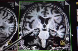 Mort subite de nourrisson : une anomalie cérébrale identifiée