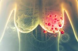 Les cellules cancéreuses du sein se développent grâce aux particules de graisse alimentaire présentes dans le sang
