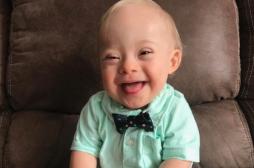 Gerber choisit un bébé trisomique comme égérie et s'élève contre la discrimination