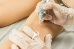 Plaies ou incisions : comment bien gérer la cicatrisation