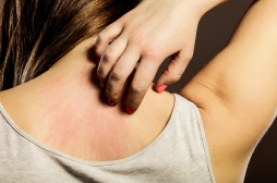 Les patients souffrant de démangeaisons chroniques sont plus sujets à la dépression