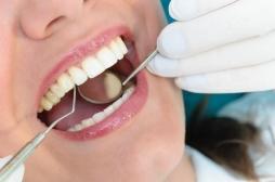 Santé bucco-dentaire : la parodontite augmente le risque d'hypertension