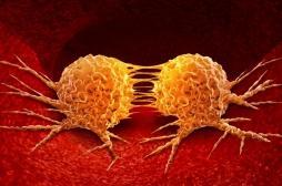 Métastases : comment les cellules cancéreuses deviennent agressives ?