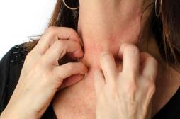 Eczéma de contact : comment expliquer la récidive et la chronicité de cette maladie ?