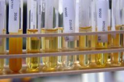 Cancer de la vessie : un test urinaire prometteur