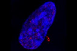 Cancers : le rôle du virus Epstein-Barr mieux compris