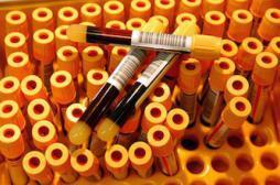 Sida : comment les 14 patients ont contrôlé le virus