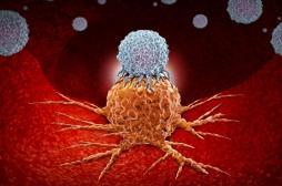 Qu'est-ce que l'immunothérapie, le traitement suivi par Bernard Tapie ?