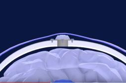 Tumeurs cérébrales : les ultrasons pourraient améliorer les traitements
