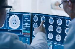 Cancer du cerveau : reprogrammer des cellules immunitaires pour améliorer l'efficacité du traitement