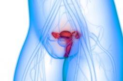Cancer de l'ovaire BRCA-muté : intérêt d'un inhibiteur de PARP sur la survie sans progression