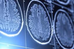 Cancer du cerveau : les femmes et les hommes ne devraient pas être traités pareil