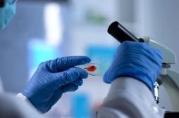 VIH: une nouvelle molécule pour empêcher la réplication du virus
