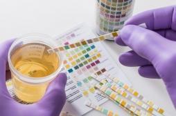 Des tests urinaires pour contrôler son alimentation