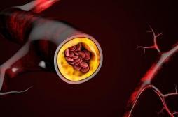 Athérosclérose : la maladie se développe très vite entre 40 et 50 ans