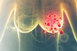 Cancer du sein HER2 positif : l'espoir d'une nouvelle thérapie androgénique
