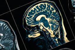 Parkinson : les signes de la maladie seraient visibles dès la naissance
