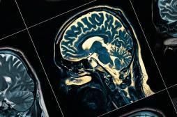 Journée mondiale de la schizophrénie :