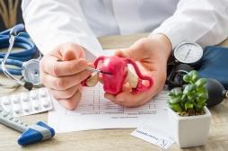 Implant contraceptif Essure : des patientes demandent une indemnisation de l'Etat