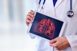 Transplantation: des poumons endommagés restaurés grâce à du sang de porc vivant